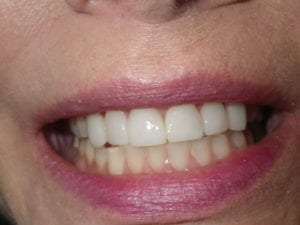 Cosmetic dental treatment 1