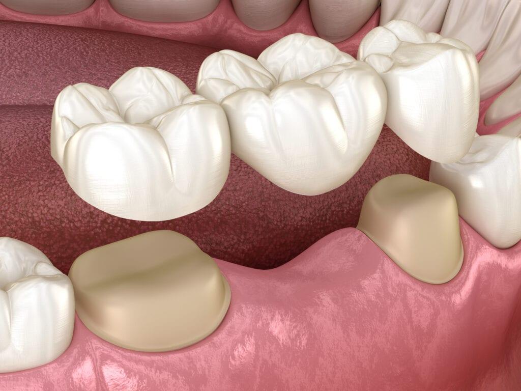 Dental Bridges Seattle at 32 Pearls