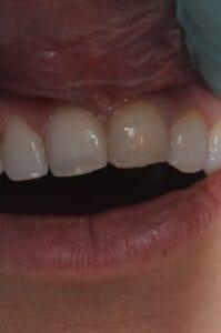 Before Veneers, 32 Pearls Seattle Dentistry